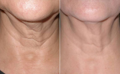 How a Laser Skin Tightening Works