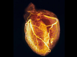 How a Nuclear Heart Scan Works